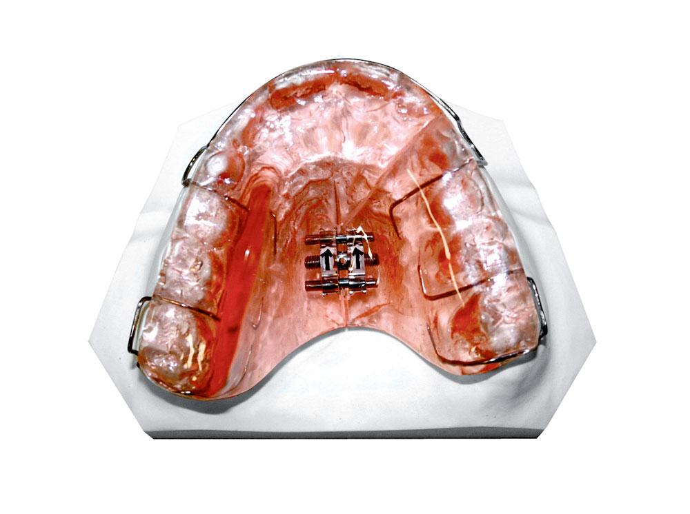 Apparecchi ortodontici rimovibili padova laboratorio for Immagini con i brillantini