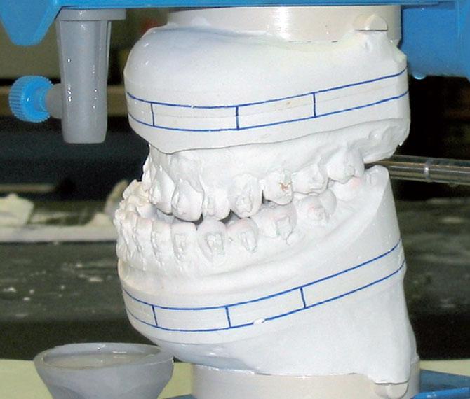 Modelli da chirurgia