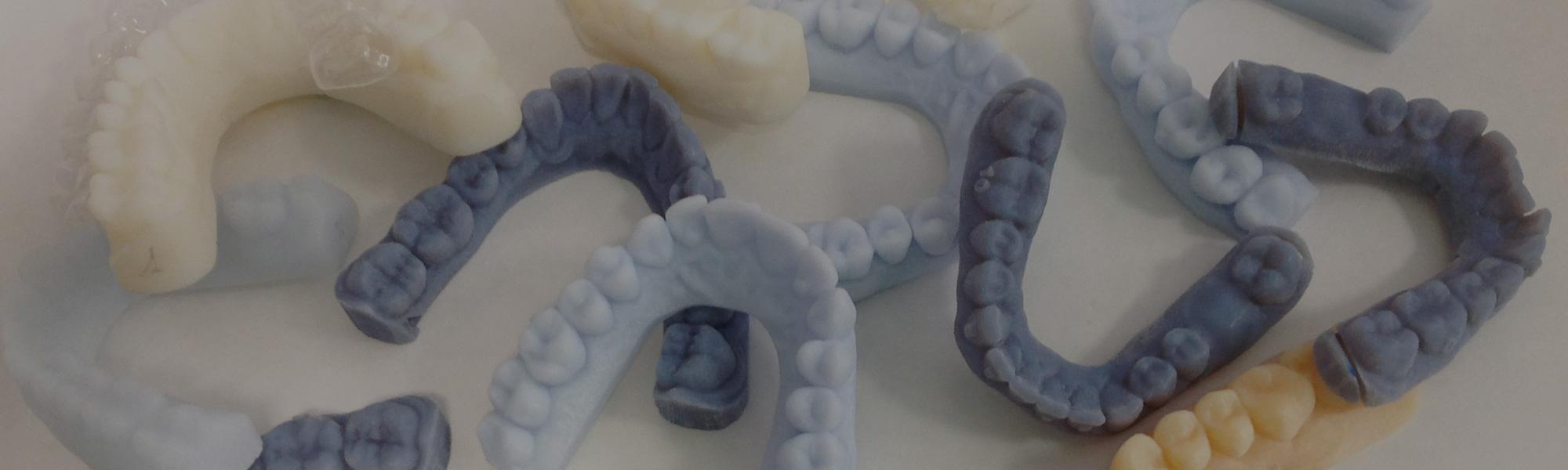 Prodotti ortodontici su misura